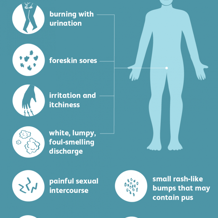 causes of yeast infection
