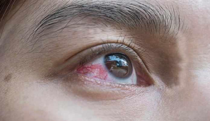 popped blood vessel in eye